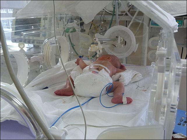 Реанимация новорожденного бывает показана в нескольких случаях, угрожающих жизни ребенка