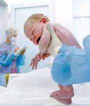 Перед реанимацией новорожденного обязательно оценивается его состояние по шкале Апгар