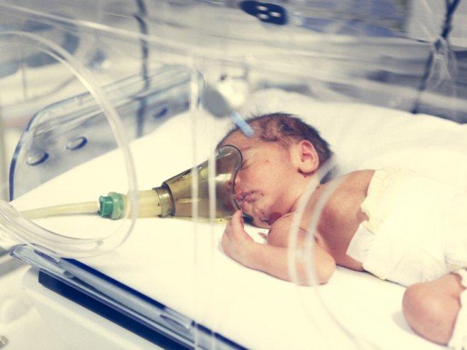 Искусственная вентиляция легких необходима при реанимации новорожденного, если он не делает самостоятельных вдохов