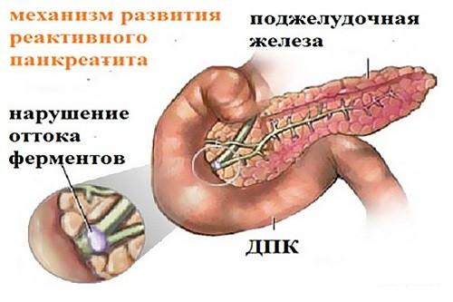 Смотрите на фото, как развивается форма реактивного панкреатита у грудных детей