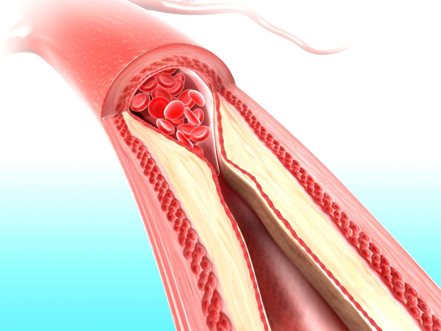 Сужение кровеносных сосудов является осложнением энтероколита у новорожденных