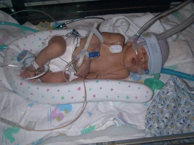 Флебит у новорожденных часто имеет пупочную локализацию, возможна госпитализация крохи