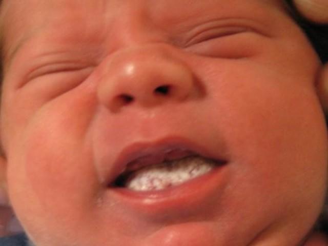 Запах изо рта у новорожденного может быть из-за молочницы, смотрите на фото, как она выглядит