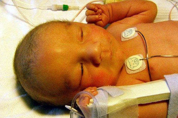 Часто лечение гепатита В у грудничков начинается еще в родильном доме