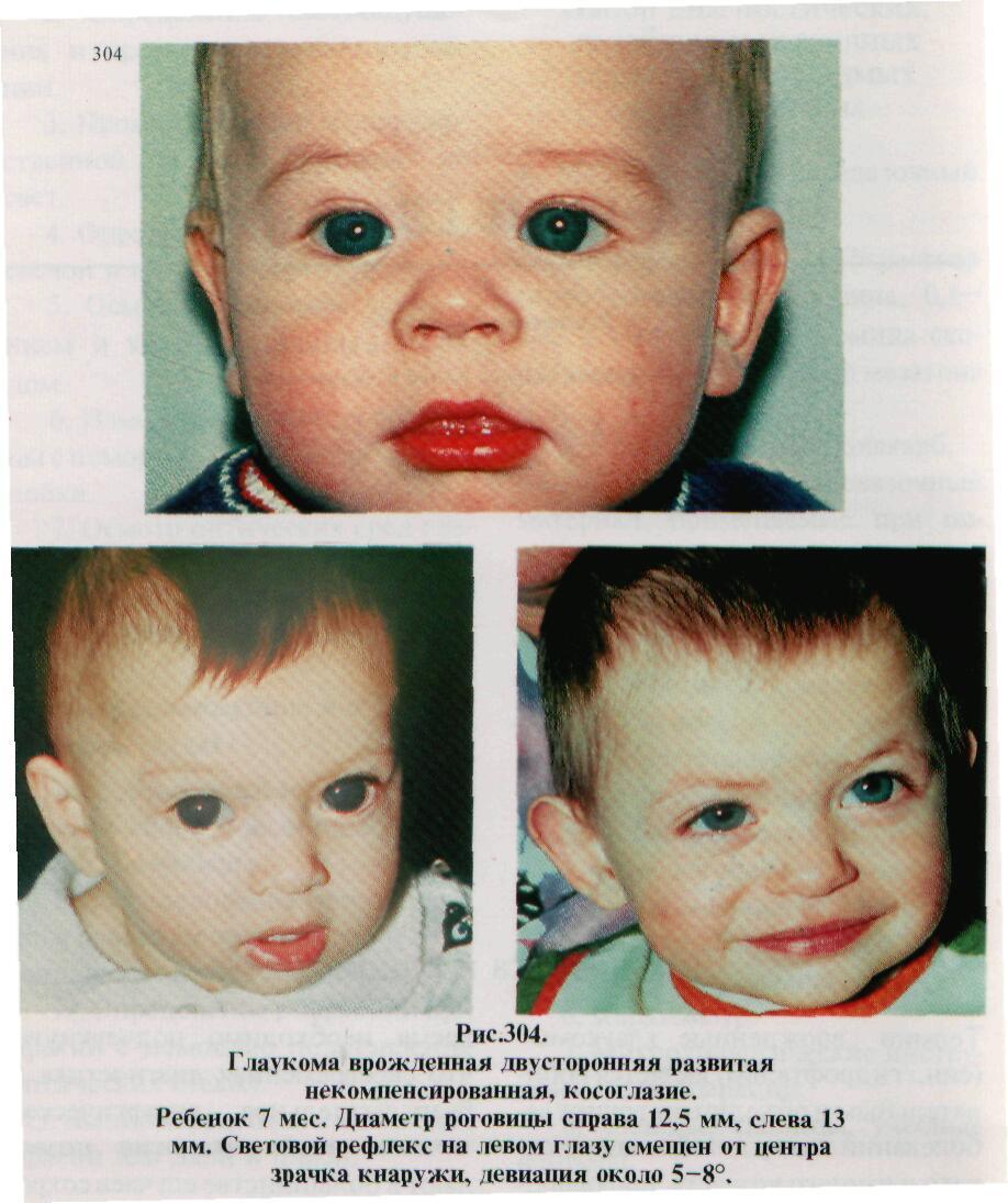 Смотрите, как выглядит глаукома у детей грудного возраста на фото