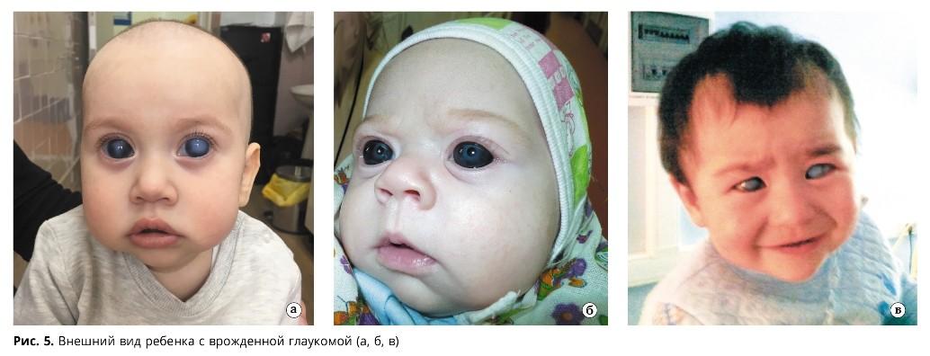 смотрите на фото, как определяется детская глаукома выраженной формы