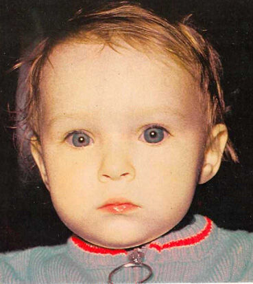Спустя года глаукома у малыша может проявиться покраснением или помутнение склеры глаза
