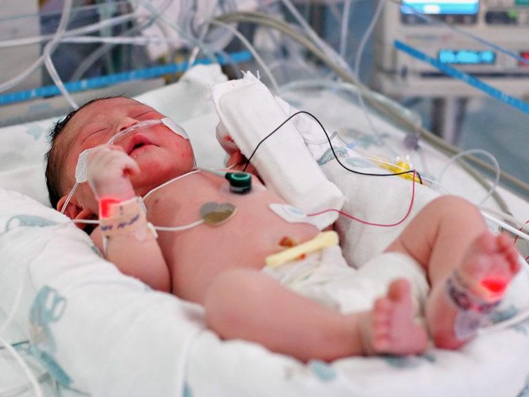 В большинстве случаев при врожденной глаукоме у детей грудного возраста показано оперативное вмешательство