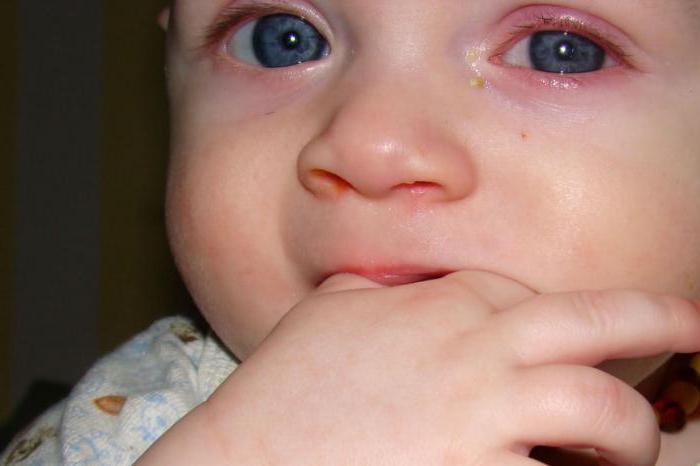 Смотрите на фото: такие красные глаза у грудничков говорят о проявлении конъюнктивита