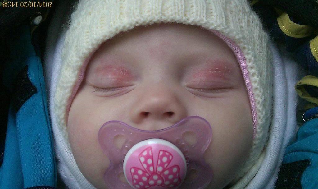 Красные глазки у грудничков могут быть признаком аллергической реакции