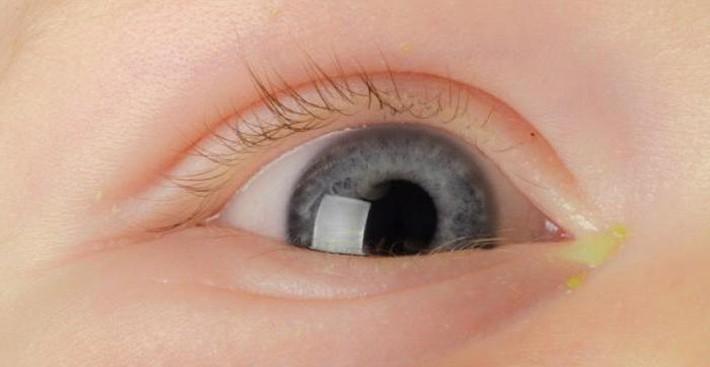 при врожденном дакриоцистите и гнойничках в уголках глаз грудничкам показан массаж носослезного канала