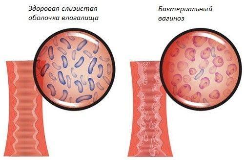 Посмотрите на норму микрофлоры влагалища и на ее нарушение на этом фото