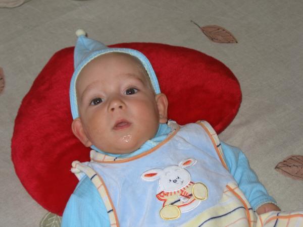 Врожденная лопоухость у новорожденных считается наследственным фактором
