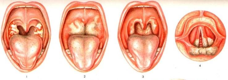 Дифтерия является противопоказанием к лечению грудничков Кортексином
