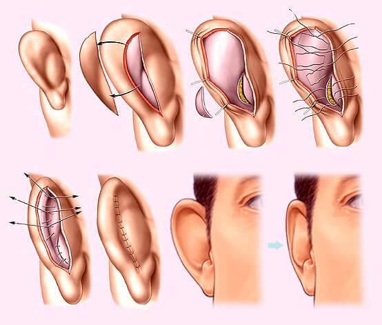 Как проводится отопластика для удаления лишнего ушного хряща