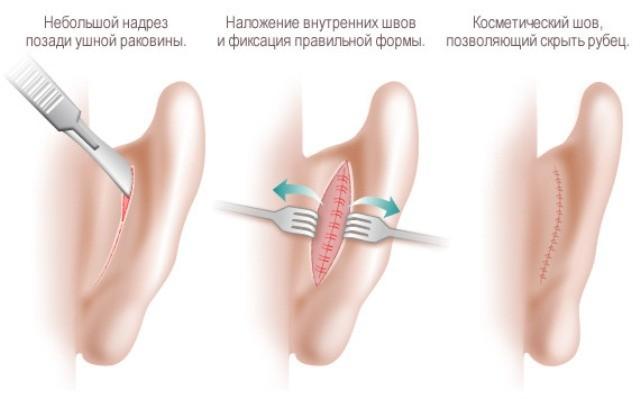 Отопластика является показанием, если ушная раковина не восстанавливается к 6 годам.