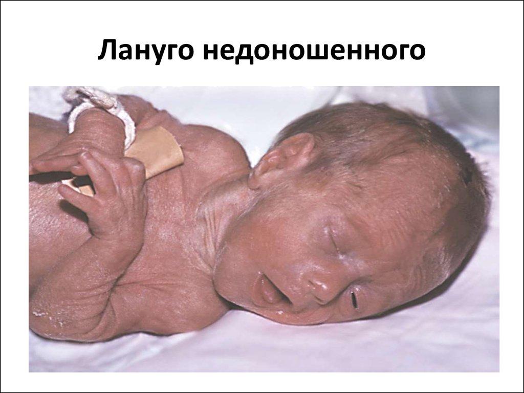 Лануго чаще замечаются у недоношенных новорожденных
