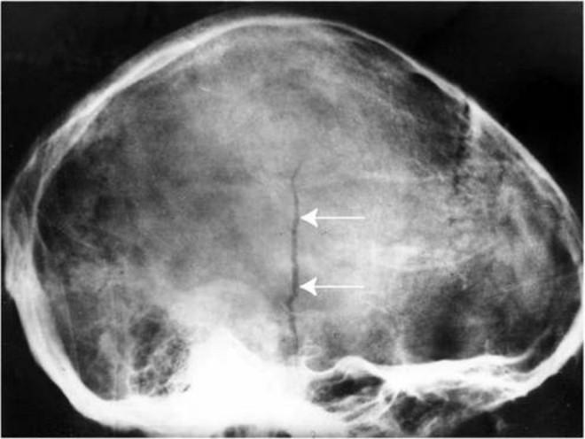 травма черепа у новорожденного